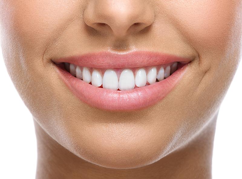 Få dit hvide smil / Spar 50%