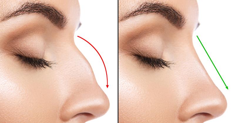 Kosmetisk operation af næsen – En stor beslutning