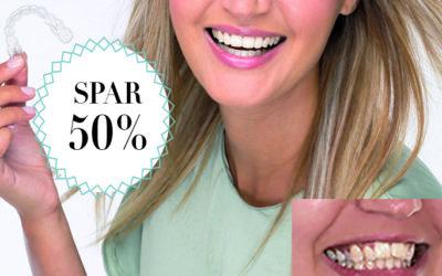 Spar 50 % / Få et flot smil