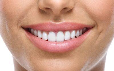 Tandlægerne på Alléen: Hvide tænder og kroner samme dag