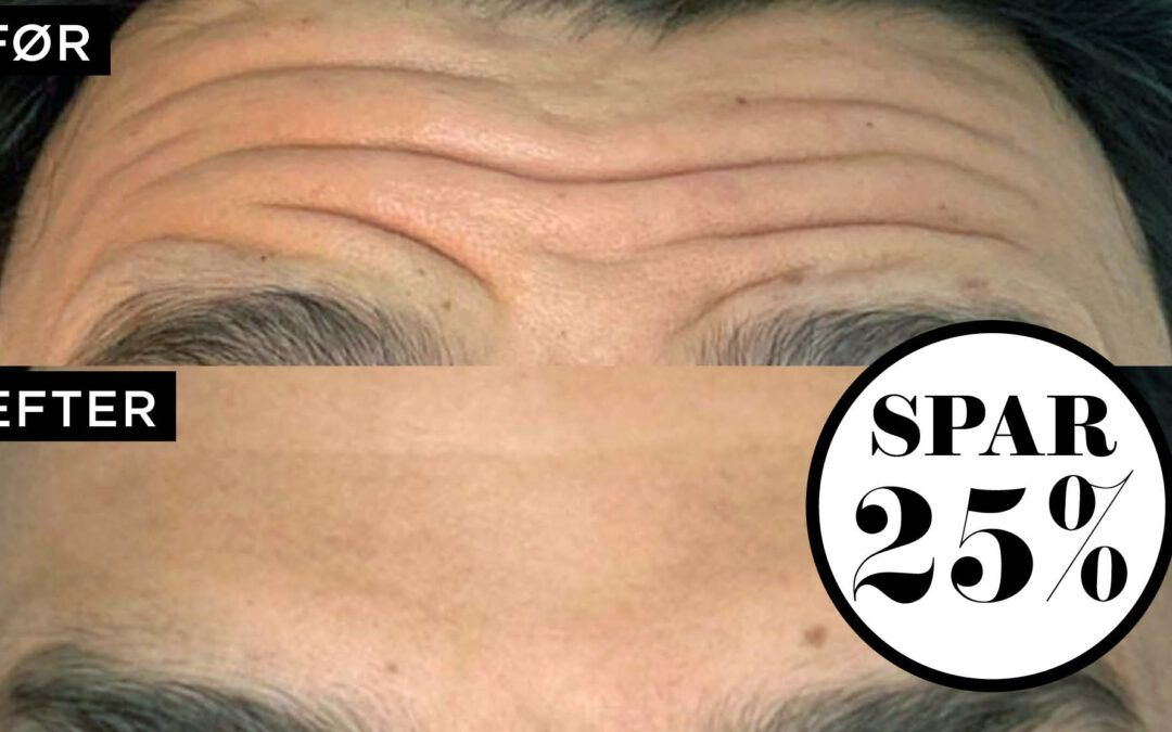 NORD Deal – Se yngre ud med Botox